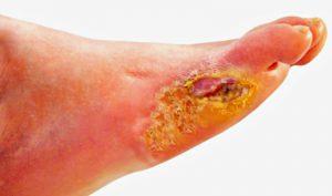 درمان زخم پای دیابتی