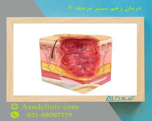 درمان زخم بستر مرحله 3