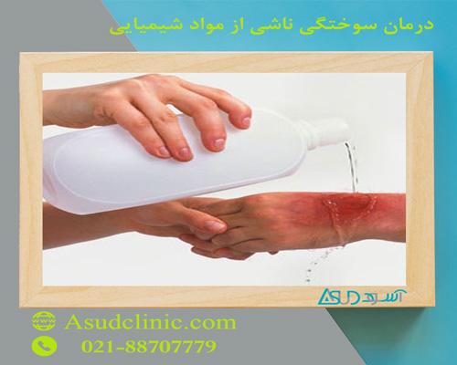 درمان سوختگی ناشی از مواد شیمیایی