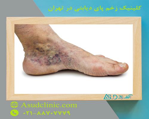 کلینیک زخم پای دیابتی در تهران
