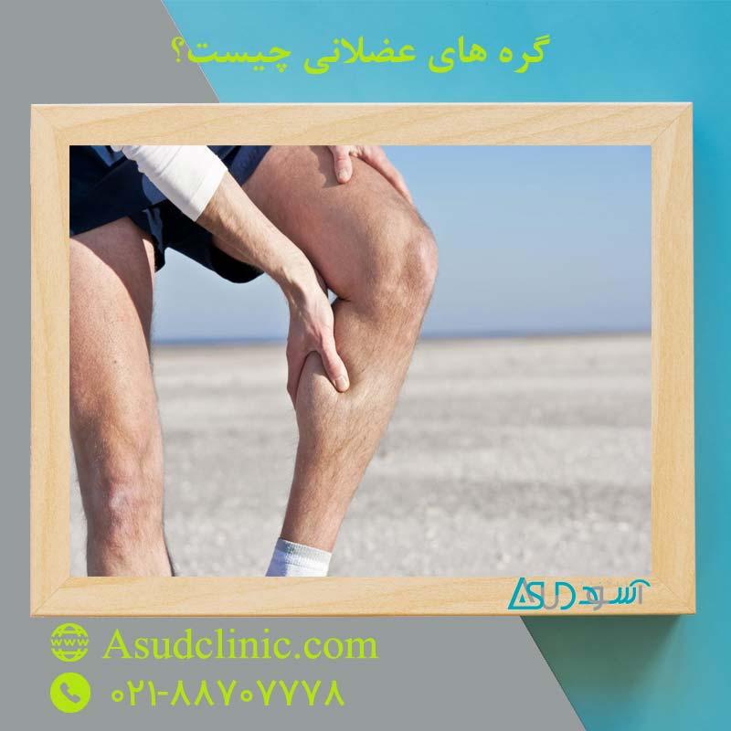گره های عضلانی چیست؟