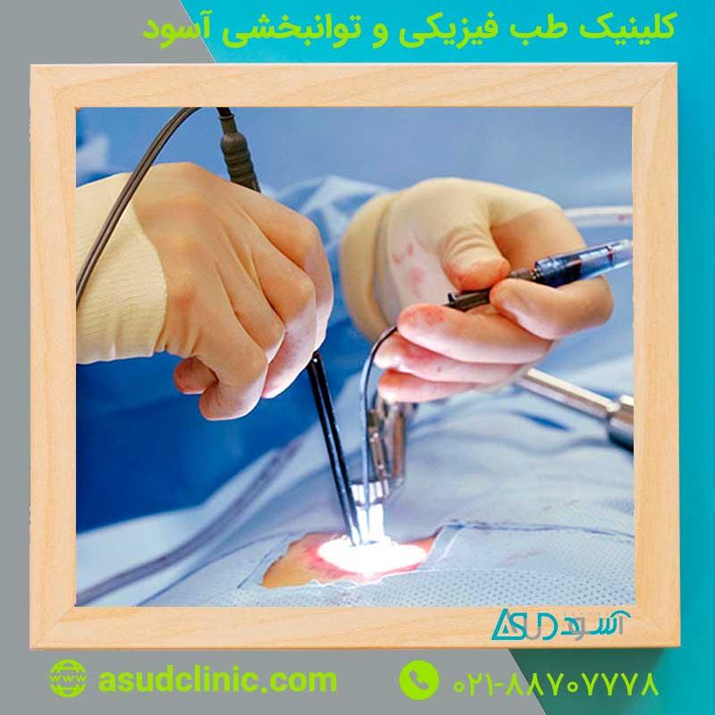 هر آنچه را می خواهید در مورد عمل جراحی لیزر کمر بدانید!