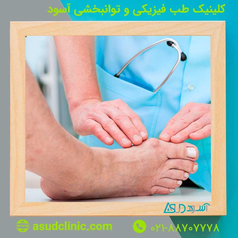 آرتریت روماتوئید در پاها