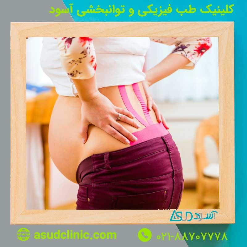 درد سیاتیک در بارداری ، پیشگیری ، درمان و کمردرد در بارداری