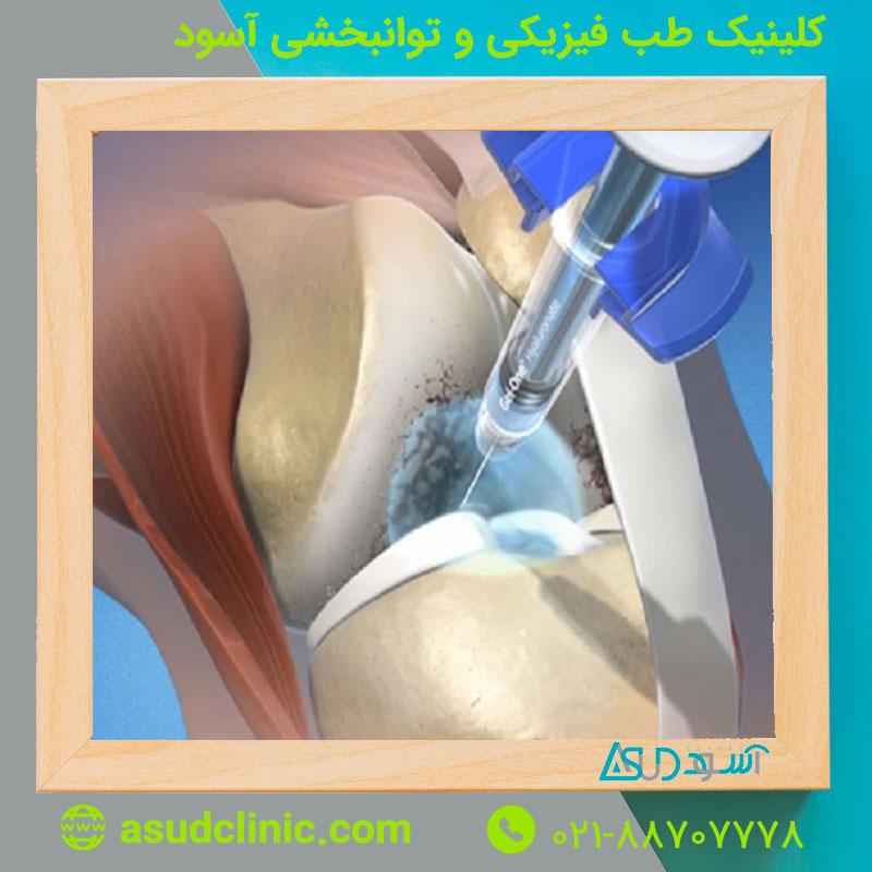 تزریق مفصل