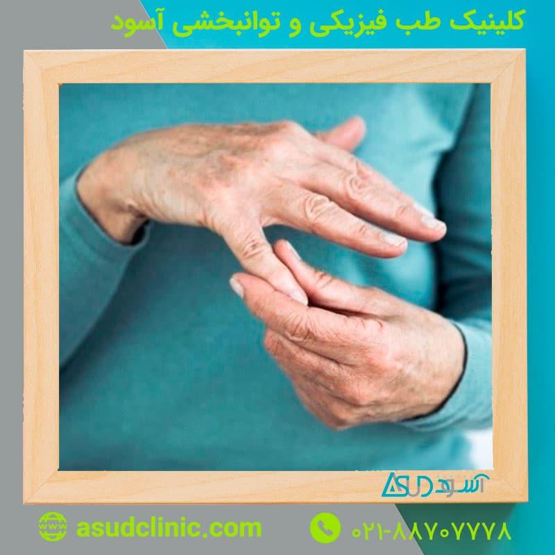 آرتروز دست و انگشتان