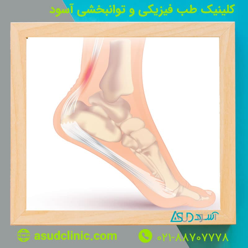 حقایقی درباره درد مچ پا و تاندونیت مچ پا