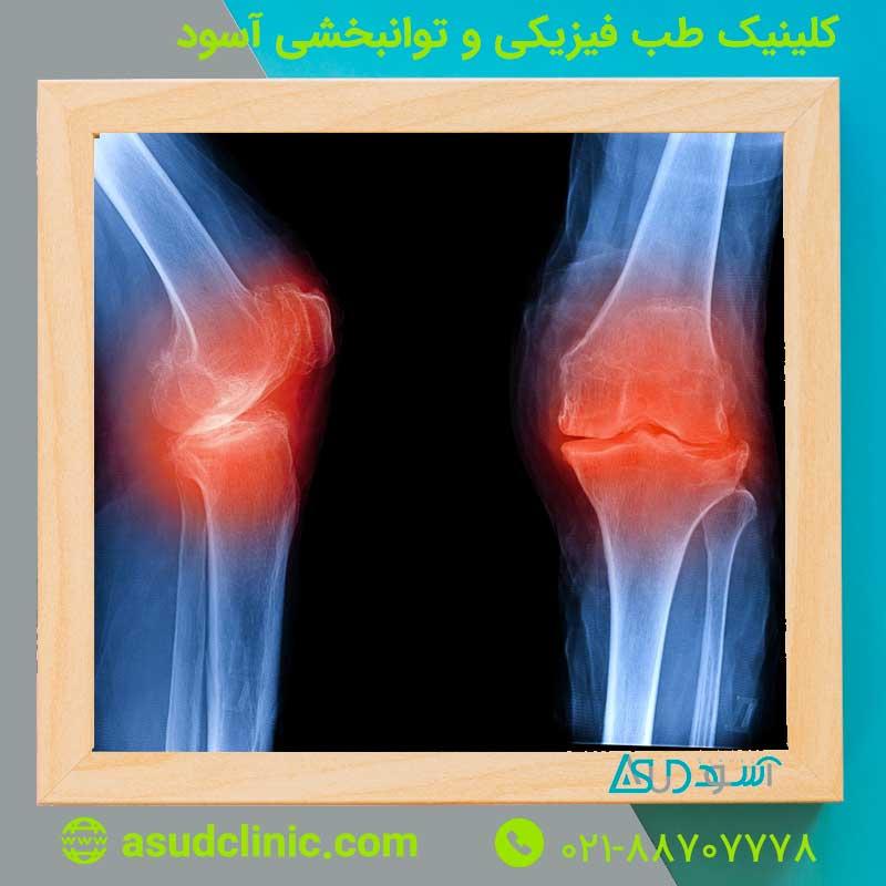 آرتروز، علایم، علل و روش های درمان